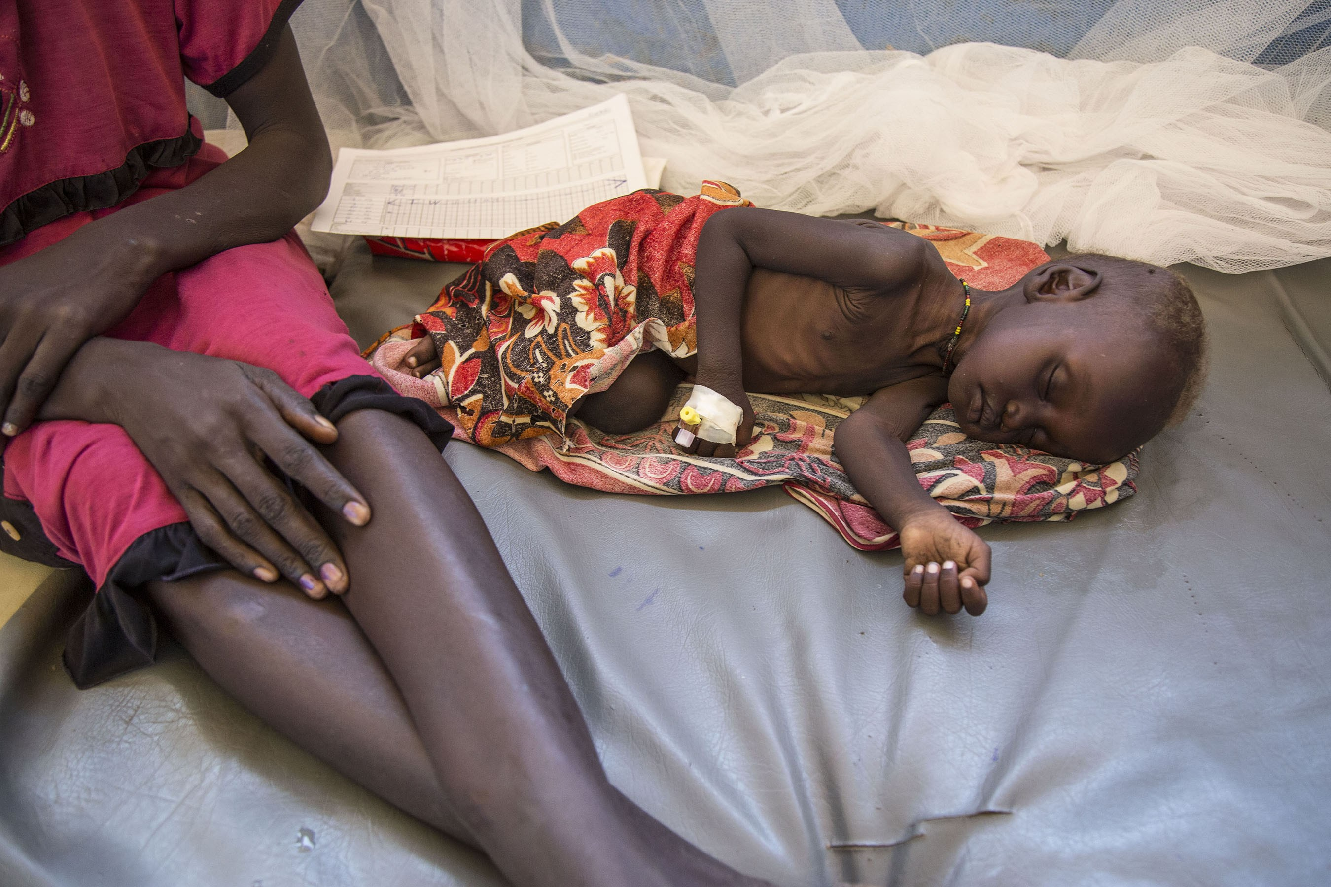 The U.N. estimates that more than 680,000 children in South Sudan suffer from acute malnutrition. (Photo: Benedict Moran)