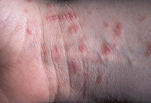 Bad Bugs: Identify Bugs and Their Bites - Explaining Medicine