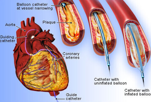 Heart attack treatment diagram auto electrical wiring diagram heart disease the no 1 killer in the u s explaining medicine rh explainingmedicine com heart attack symptoms diagram heart attack graphic ccuart Image collections