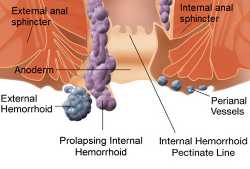 Hemorrhoids: An Illustrated Guide to Treatment