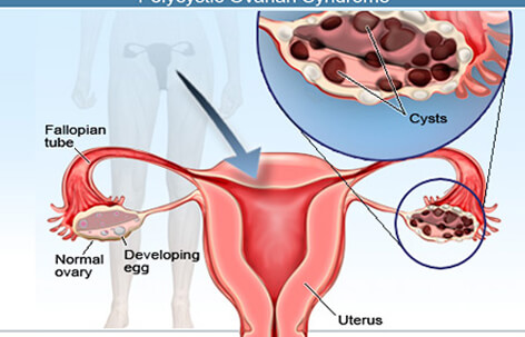 Ovarian Cysts: Are Ovarian Cysts Cancer?